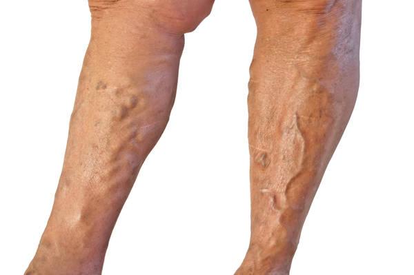 traitement varices aux jambes