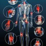 Classement Douleur articulaire mollet | Flexa Plus Optima - Qualité Prix
