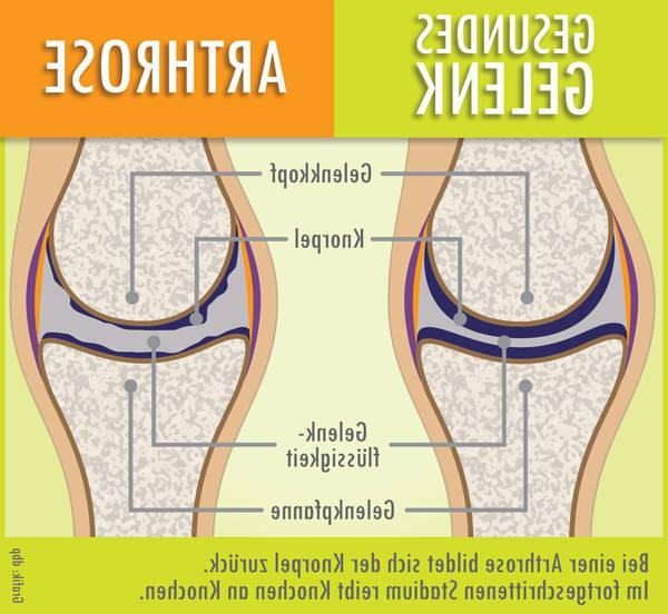 arthrose cervicale arret travail