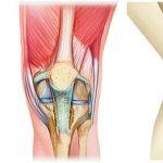 Découvrir Arthrose hanche et bassin | Flexa Plus Optima - Avis des forums