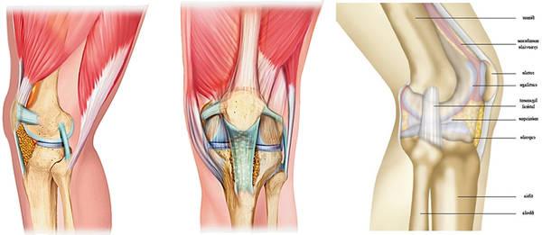 arthrose cervicale complication