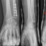 Découvrir Flexa Plus Optima - Arthrose genou hand ball | Avis des forums
