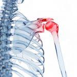 Classement Arthrose hanche douloureuse | Flexa Plus Optima - Avis des clients