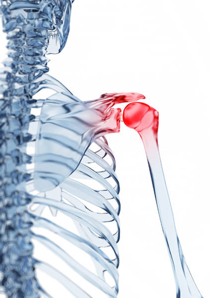 arthrose cheville et sport