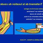 Découvrir Douleur articulation cheville matin | Flexa Plus Optima - Test & opinions