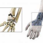 Comparateur Arthrose pied genou | Flexa Plus Optima - Test & opinions