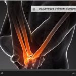 Acheter Flexa Plus Optima - Arthrose du genou chez le homme | Composition