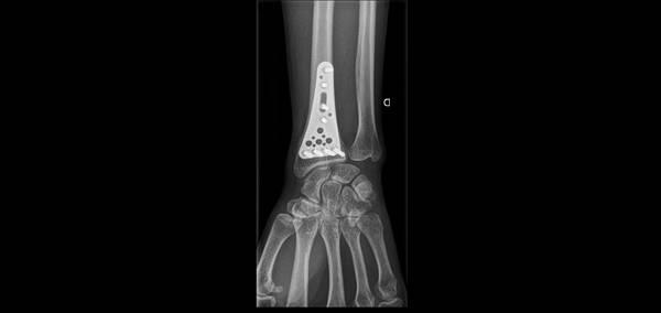 douleur articulation hanche velo