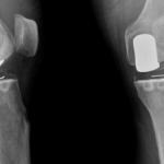Découvrir Arthrose coude musculation | Flexa Plus Optima - composition