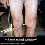 Découvrir Flexa Plus Optima - Arthrose cheville apres fracture |  Qualité Prix