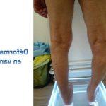 Découvrir Cure thermale arthrose genou balaruc | Flexa Plus Optima - Test & opinions