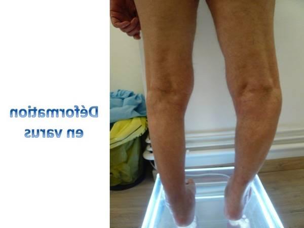 arthrose hanche traitement homéopathique