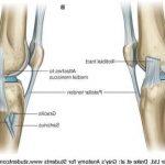 Découvrir Flexa Plus Optima - Arthrose au genou une nouveauté prometteuse | Avis des forums