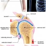Classement Flexa Plus Optima - Arthrose genou glace | Avis des forums