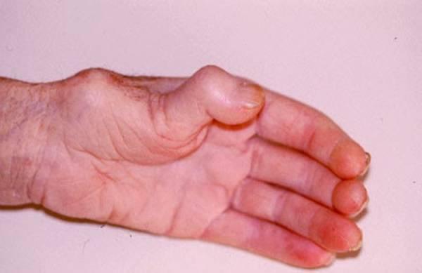 soulager arthrose nuque
