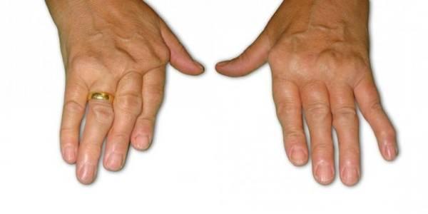douleur articulation radio carpienne
