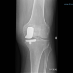 Comparateur Douleur articulaire bras | Flexa Plus Optima - Qualité Prix
