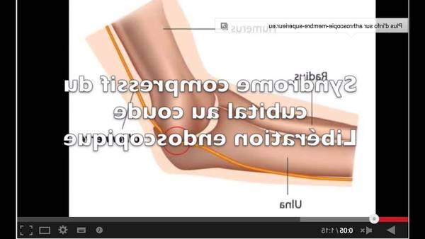 soulager arthrose homéopathie