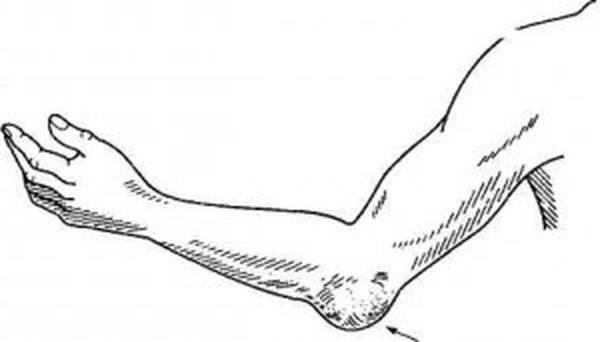 douleur articulaire xanax