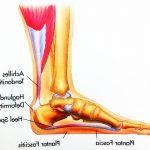 Acheter Flexa Plus Optima - Arthrose genoux et jogging | Avis des utilisateurs