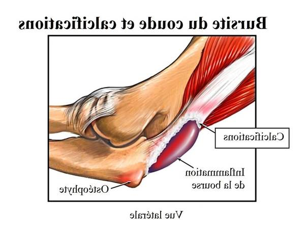 arthrose hanche nouvelle technique