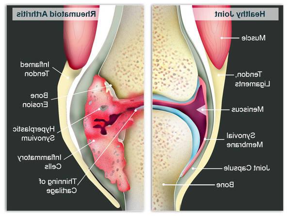 arthrose ou spondylarthrite