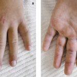 Acheter Flexa Plus Optima - Prevention contre l'arthrose |  Test & opinions