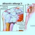 Comparatif Douleur articulaire matin | Flexa Plus Optima - Avis des experts