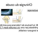 Acheter Douleurs articulations obésité | Flexa Plus Optima - Avis des utilisateurs