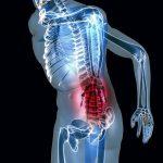 Acheter Flexa Plus Optima - Arthrose cervicale rhumatologue |  Test & recommandation
