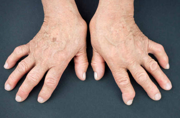 crise arthrose main