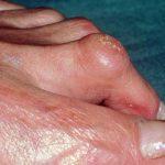 Comparer Arthrose hanche a 30 ans | Flexa Plus Optima - Avis des forums