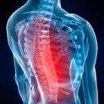 Découvrir Articulation genou bloquée | Flexa Plus Optima - Test & recommandation