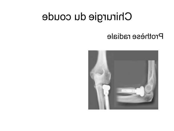 arthrose hanche marche