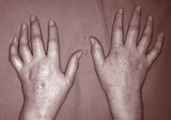 arthrose hanche chaleur
