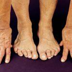 Comparer Douleur articulaire au repos | Flexa Plus Optima - Test complet