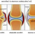 Acheter Arthrose deformante cheville | Flexa Plus Optima - Avis des experts