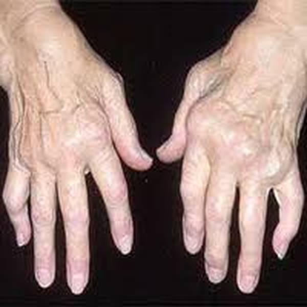 crise arthrose homme homeopathie