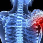 Découvrir Arthrose ou rhumatisme inflammatoire | Flexa Plus Optima - Avis des experts