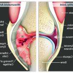 Découvrir Flexa Plus Optima - Arthrose hanche massage |  Qualité Prix