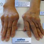 Comparatif Arthrose cervicale kinesitherapie   Flexa Plus Optima - Test & opinions