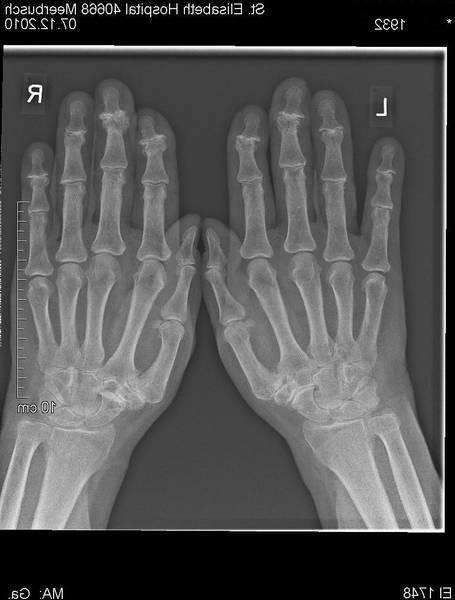 mouvement pour soulager arthrose hanche