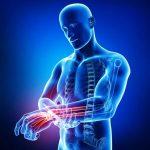 Comparer Comment soulager arthrose cervicale naturellement | Flexa Plus Optima - Où l'acheter ?