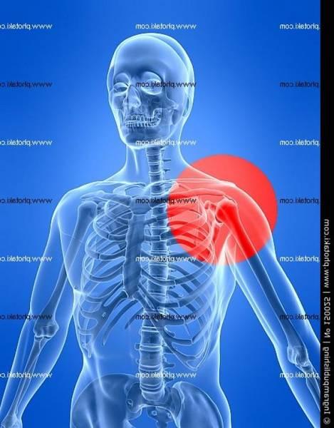 arthrose hanche traitement naturel