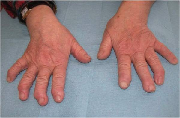 arthrose du coude avec ostéophytose