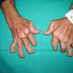 Classement Douleur articulaire hormonothérapie | Flexa Plus Optima - Test & avis