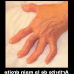 Acheter Douleur articulaire fessier | Flexa Plus Optima - Test & avis