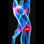 Acheter Arthrose cervicale nerf | Flexa Plus Optima - Qualité Prix