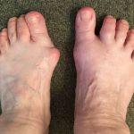 Corriger le pied sans semelle (qr 6) - frédéric brigaud