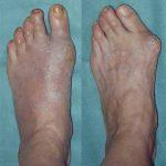 Hallux valgus : intervention sur le pied & la cheville